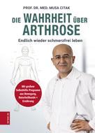 Prof. Dr. Med. Musa Citak: Die Wahrheit über Arthrose