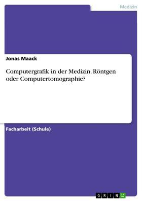 Computergrafik in der Medizin. Röntgen oder Computertomographie?