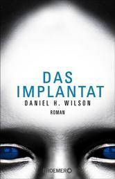 Das Implantat - Roman