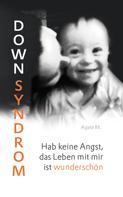 Agata M.: Down Syndrom